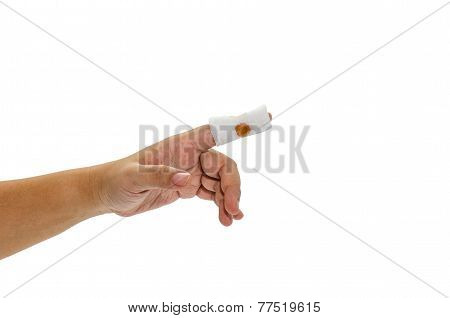 Woman Finger is wound by medication.