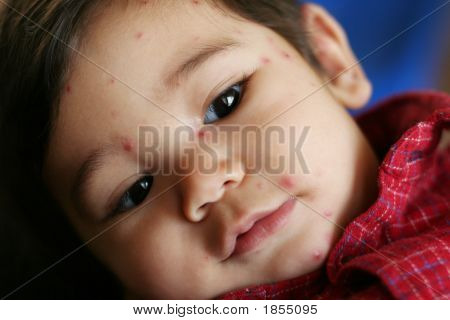 Baby Boy With Chicken Pox