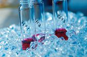 stock photo of cytology  - Samples of biological materials in a ice box - JPG