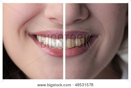 teeth of a healthy woman opposed to bad teeth