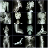 stock photo of human toe  - Collection human joint  - JPG
