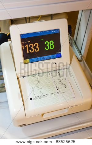 monitor for measuring of labor contractions