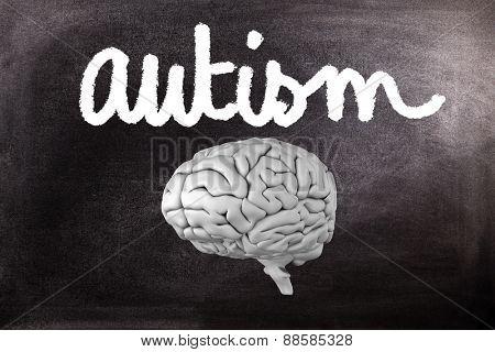 brain against black background