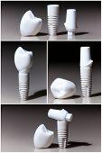 pic of dental  - Models of dental - JPG