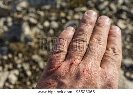 Several Small Wound On His Hand