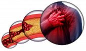 Human Heart Disease And Chest Pain From Clogged Arteries And Artery Damaged With Cholesterol Resulti poster