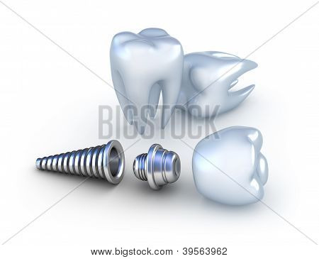 Dental implant and teeth, isolated on white