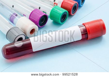 Blood Samples Tube For Screening Test.