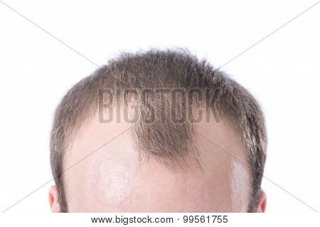 Man's Receding Hairline