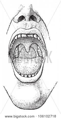Tonsils, vintage engraved illustration. Dictionary of words and things - Larive and Fleury - 1895.