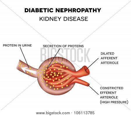 Diabetic Nephropathy, Glomerulus Anatomy