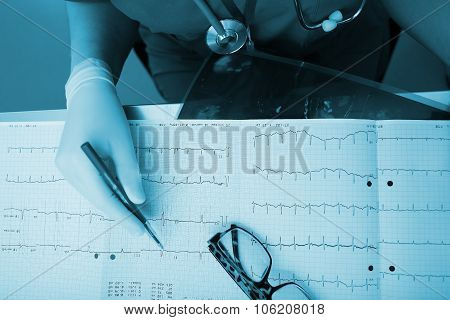 Medical Experts Are Studying The Ecg Condition Of The Patient