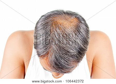 Hair Loss And Grey Hair, Male