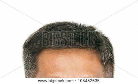 Hair Loss Isolated On White Background