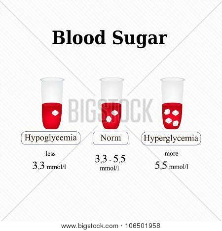The level of sugar in the blood. Hypoglycemia. Hyperglycemia. Infographics. Vector illustration