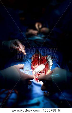 Teamwork Surgeons During Open-heart Surgery