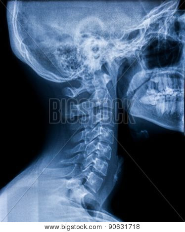 X-ray Of The Neck