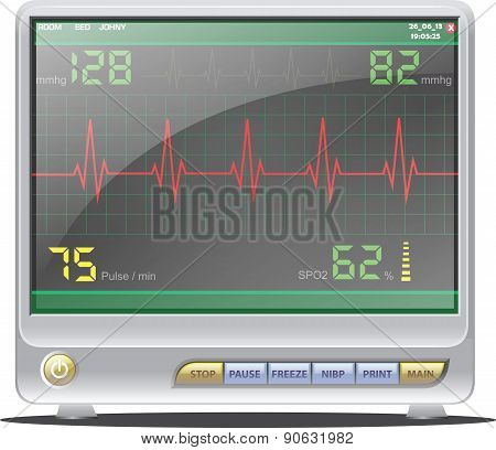 ECG Monitor - Illustration