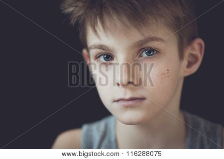Serious Face With Scars Of Young Boy Against Black