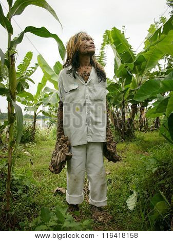 The 'Treeman of Indonesia', Dede Koswara