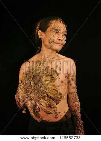 Dede Koswara, the Indonesian 'Tree Man'