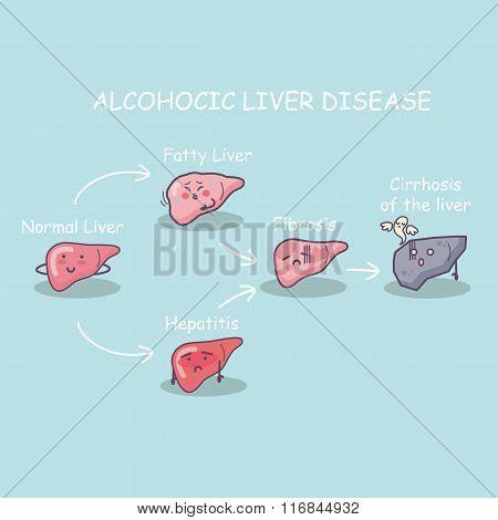 Health Liver Vs Cirrhosis Liver
