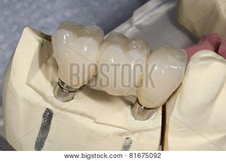 Dental Implant To Three Elements