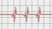 picture of electrocardiogram  - Electrocardiogram  - JPG