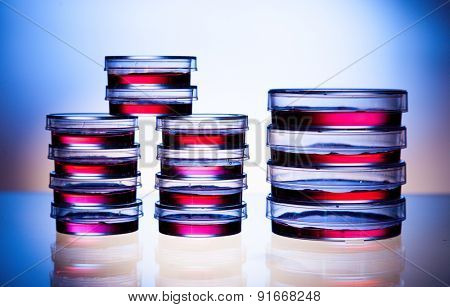 Samples in petri dishes in laboratory