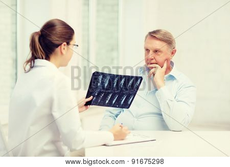 healthcare, medicine and elderly concept - female doctor with old man looking at x-ray