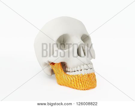3d printed human jaw. 3d printed implants on white background. 3d illustration.