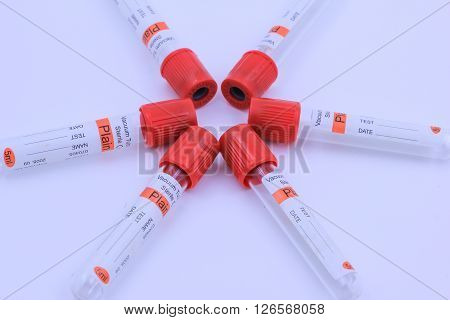 The blood test tube for analyzing in laboratory