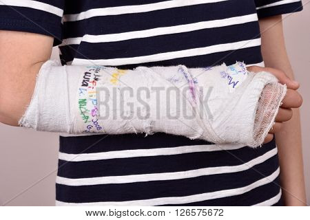 Broken arm with plaster that has been autographed by friends