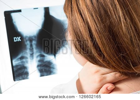 woman with pain in cervical and x-ray in hand