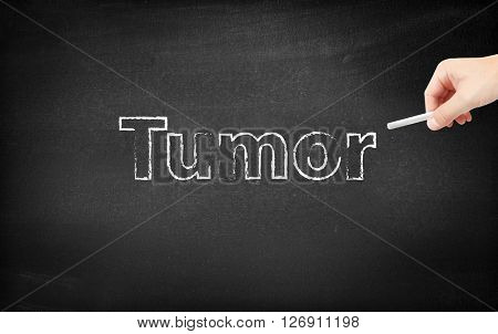 Tumor written on a blackboard