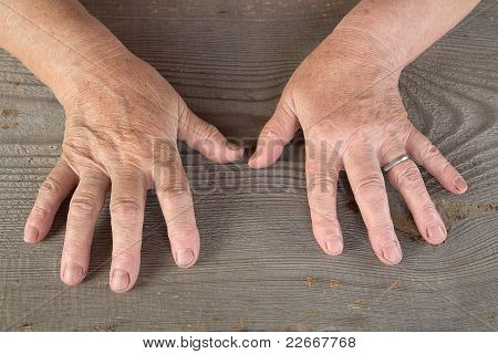 Hands Of The Old Woman