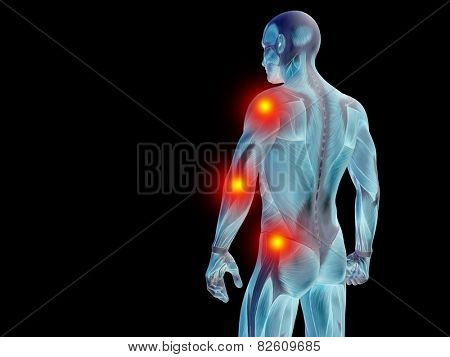Conceptual 3D human man anatomy or health design, joint or articular pain, ache or injury on black background for medical, fitness, medicine, bone, care, hurt, osteoporosis, painful, arthritis or body