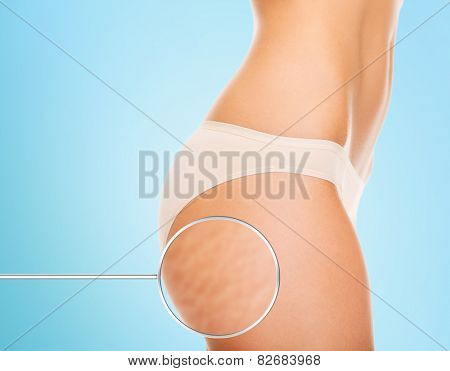 health, people, bodycare and beauty concept - close up of woman buttocks with cellulite and magnifier over blue background