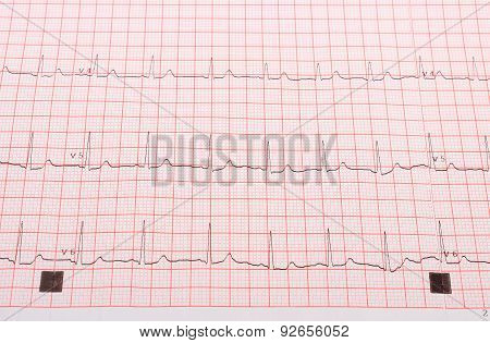 Electrocardiogram On The Pink Grid
