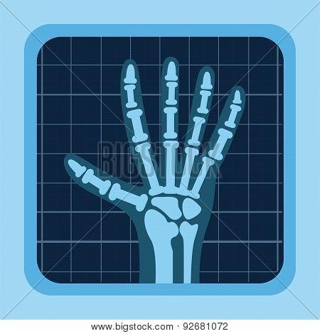 x rays design