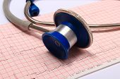 stock photo of electrocardiogram  - Medical stethoscope and electrocardiogram graph ekg heart rhythm medicine concept - JPG