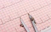 foto of electrocardiogram  - Electrocardiogram graph and calipers ekg heart rhythm medicine concept - JPG