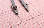 picture of electrocardiogram  - Electrocardiogram graph and calipers ekg heart rhythm medicine concept - JPG