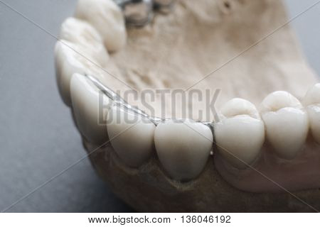 Ceramic dental implants on gypsum layout close-up. Human jaw, made with plaster, with ceramic dentures. False teeth on gypsum jaw