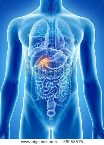 3d rendered, medically accurate illustration of gallbladder cancer