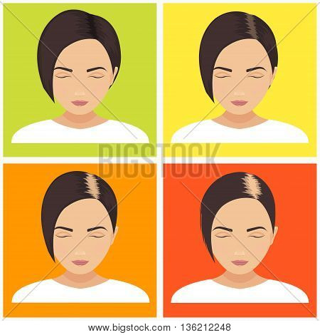 Female hair loss stages vector set on multicolored background. Female pattern baldness. Different stages of hair loss in women. Transplantation of hair. Human hair growth. Hair care concept.