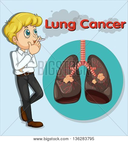 Man smoking and lung cancer illustration
