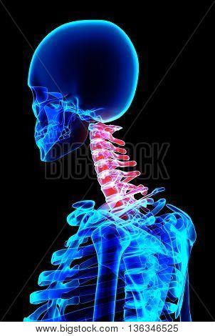 Neck Painful Skeleton X-ray, 3D Illustration.