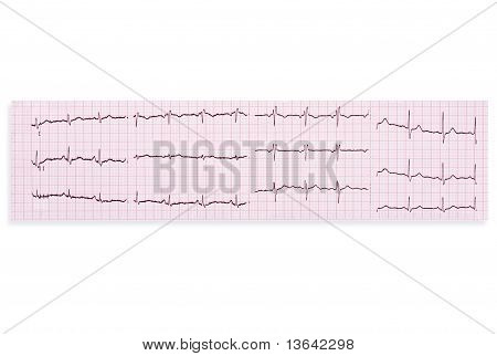 Heart Analysis, Ecg Graph.