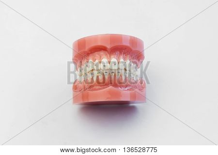 Model of human jaw with wire braces attacheg on white background.